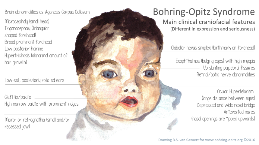 clinical craniofacial features